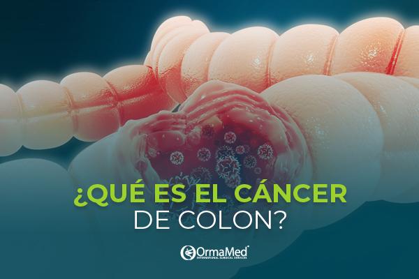 ¿Qué es el cáncer de colon y cómo detectarlo?