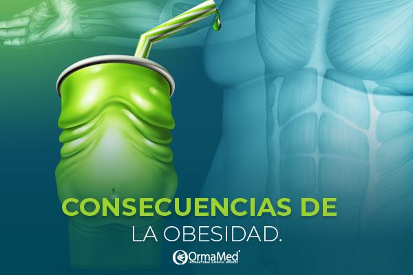 Obesidad en México. ¿Sabes cuáles son sus consecuencias?