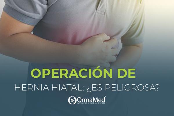 ¿La operación de hernia hiatal es peligrosa?