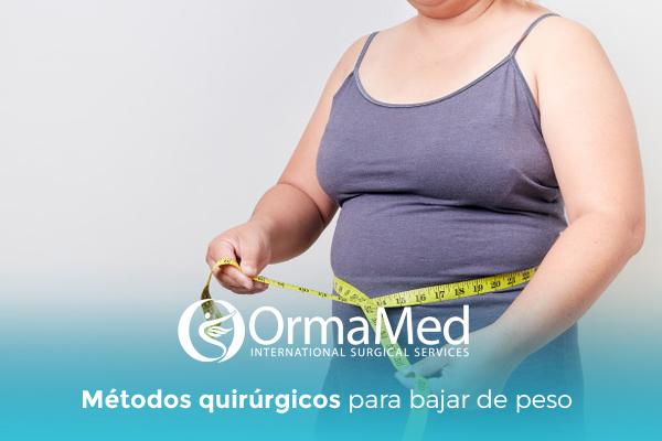 Métodos quirúrgicos para bajar de peso