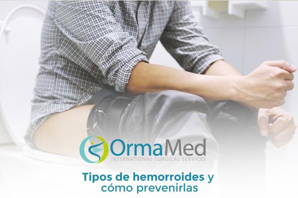 Tipos de hemorroides y cómo prevenirlas